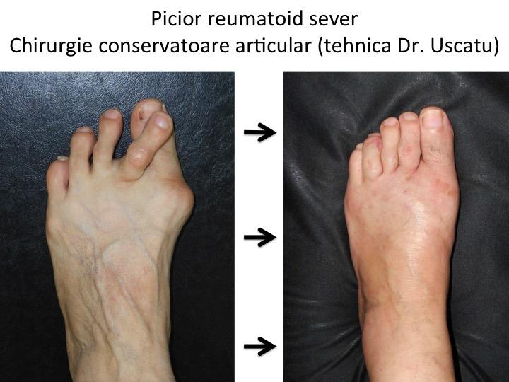tratarea cu succes a artrozei piciorului deteriorarea cartilajului articular al articulației cotului