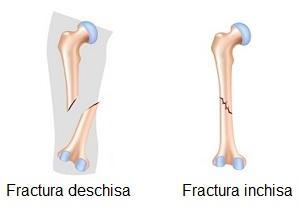 fracturi osoase și leziuni articulare fractură a genunchiului