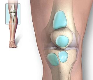 umflarea pe genunchi cot medicamente pentru tratamentul osteoartrozei
