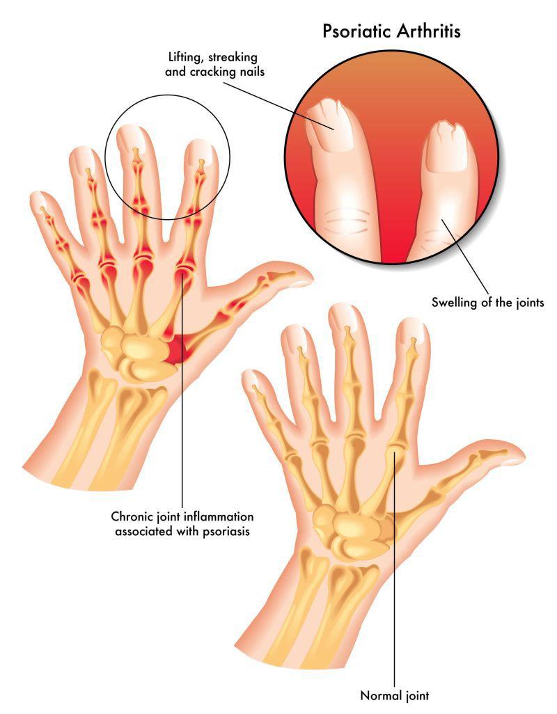 cum să tratăm edemul cu artrita reumatoidă