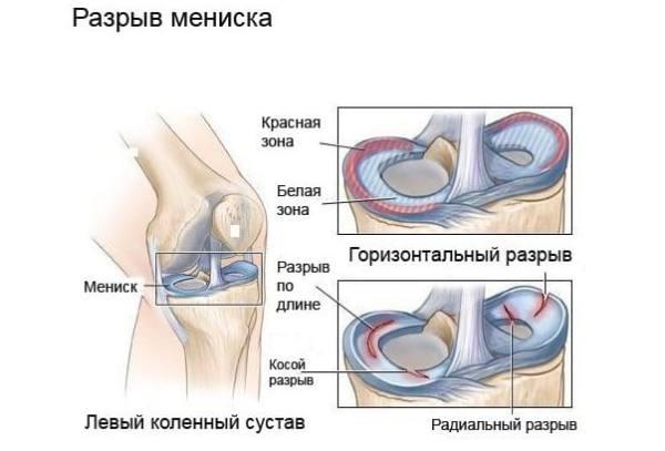 tratament articular în inul obl