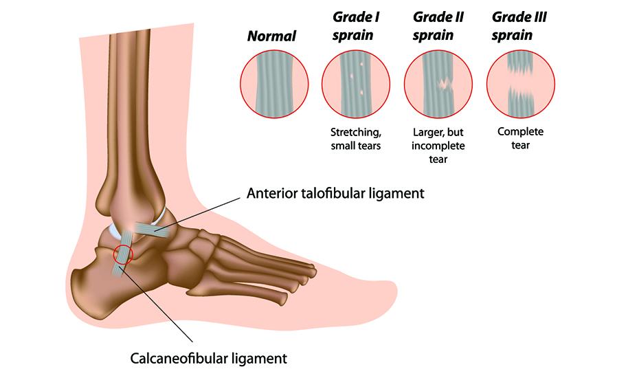 cum se poate vindeca rapid artroza articulației gleznei