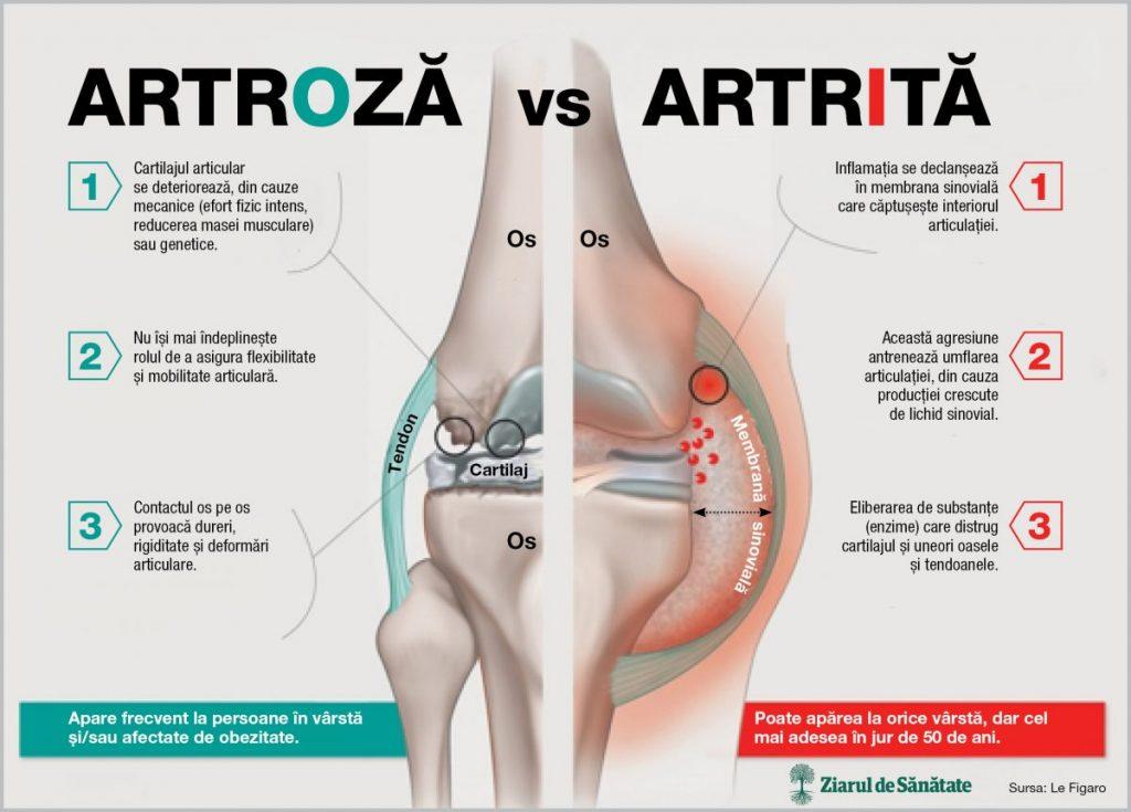 artroza cronică a genunchiului articulațiile și dinții doare