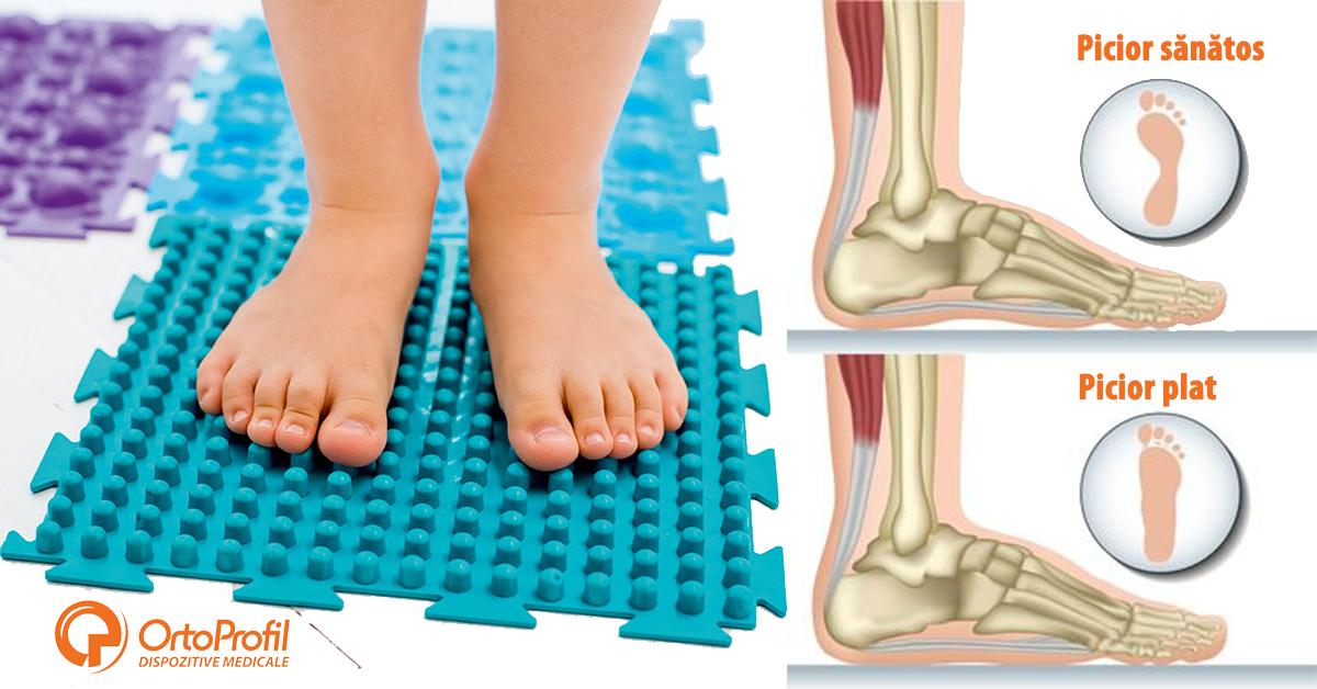 tratament articular electrostal artrita simptomelor tratamentului articulației genunchiului