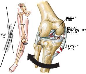 Ruptură și leziune de LIA - ligament încrucișat anterior