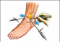 simptomele durerii articulare a genunchiului