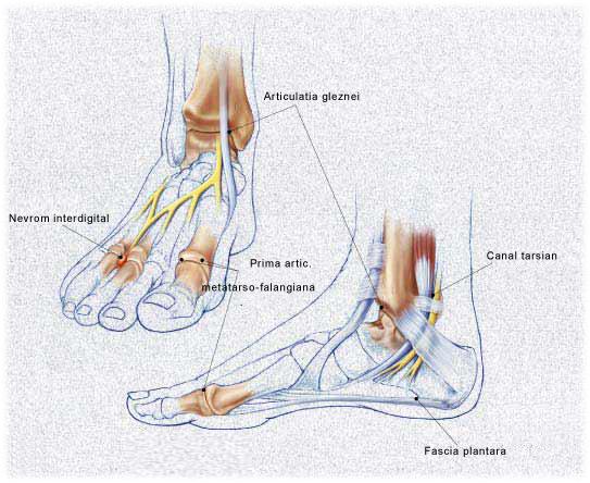 Medicament pentru tratamentul osteoartrozei articulației gleznei