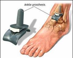 dureri de genunchi cu piciorul îndoit