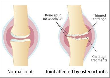 Structura și bolile articulației articulare a atlantozei