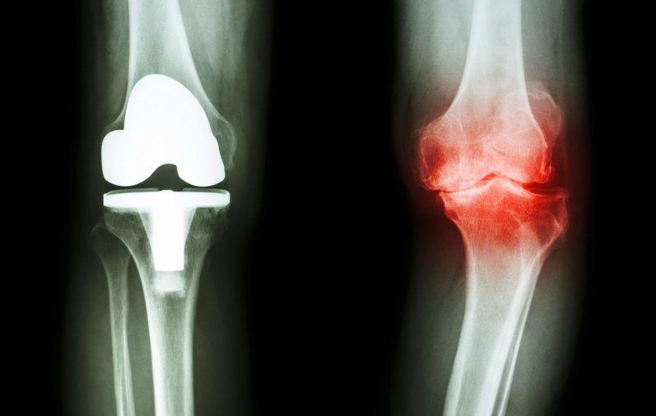 tratament în artroza din Slovenia