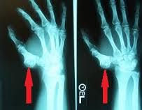tratament de genunchi al corpului condrom