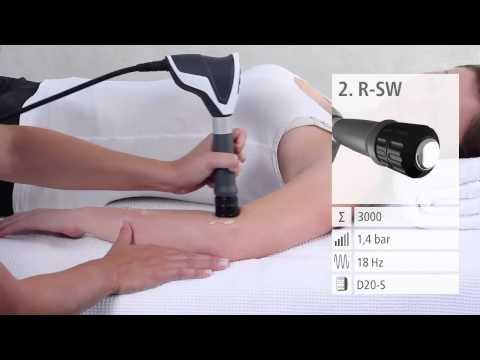 unguente pentru tratamentul artrozei articulației cotului