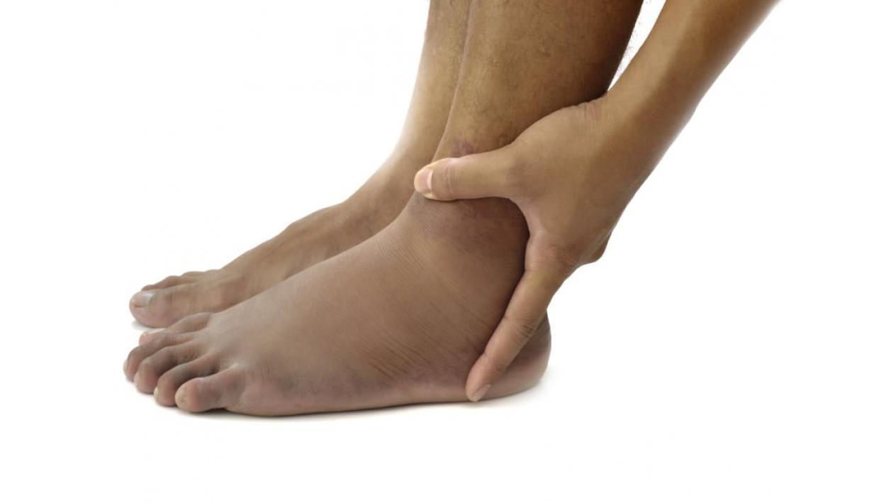 umflarea pe picioarele bolii articulare