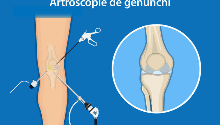 cum se tratează medicația articulației genunchiului