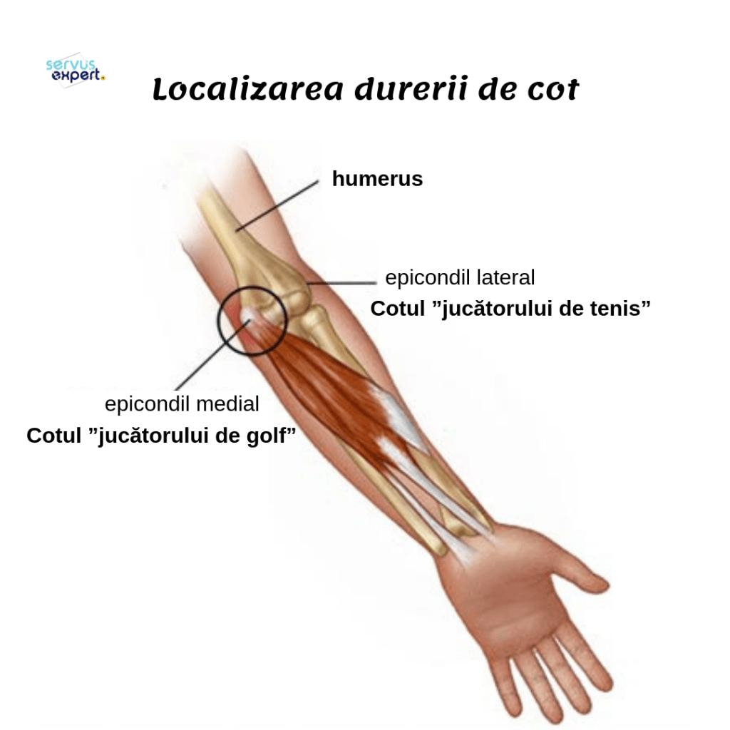 ruptura musculară a tratamentului articulației cotului