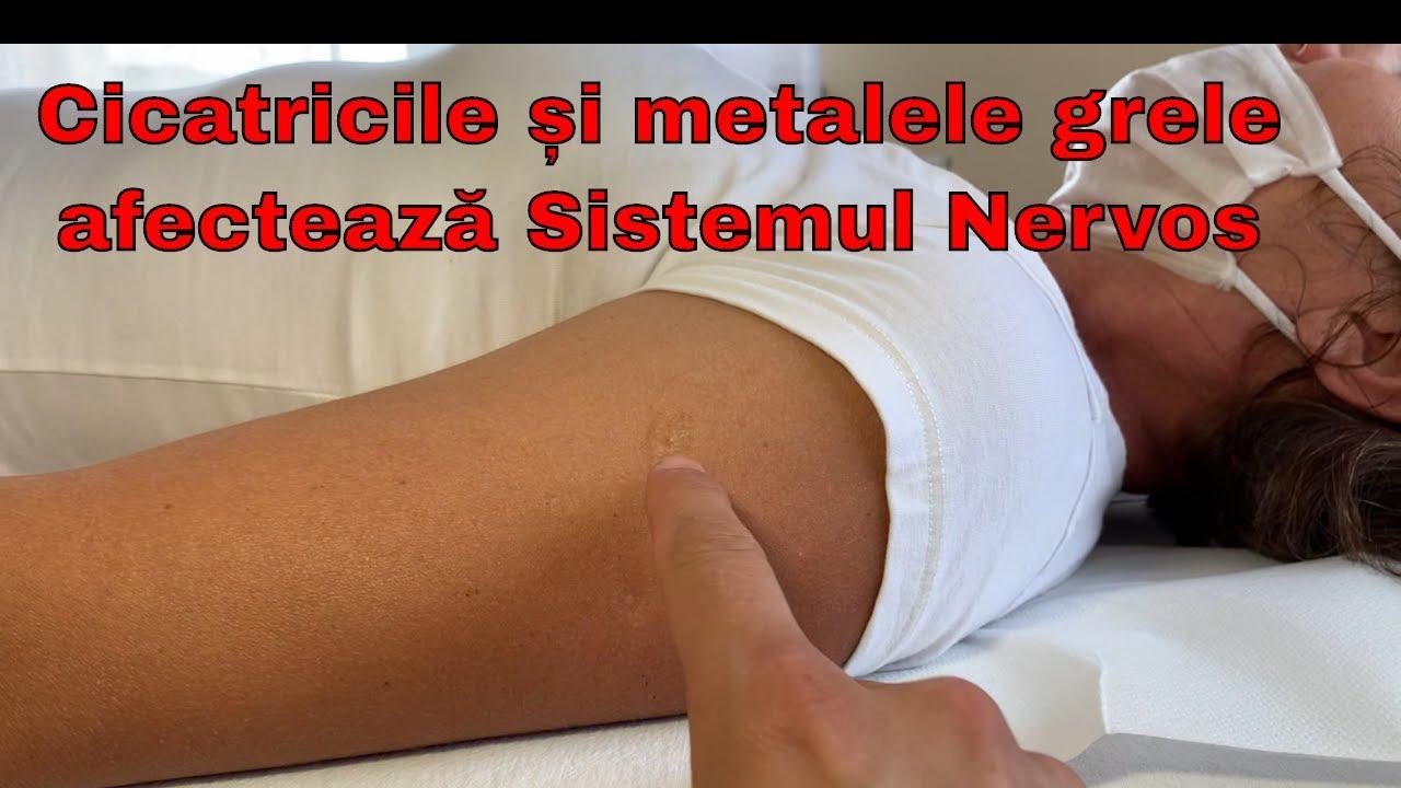 Tratamentul articulațiilor cu rodon