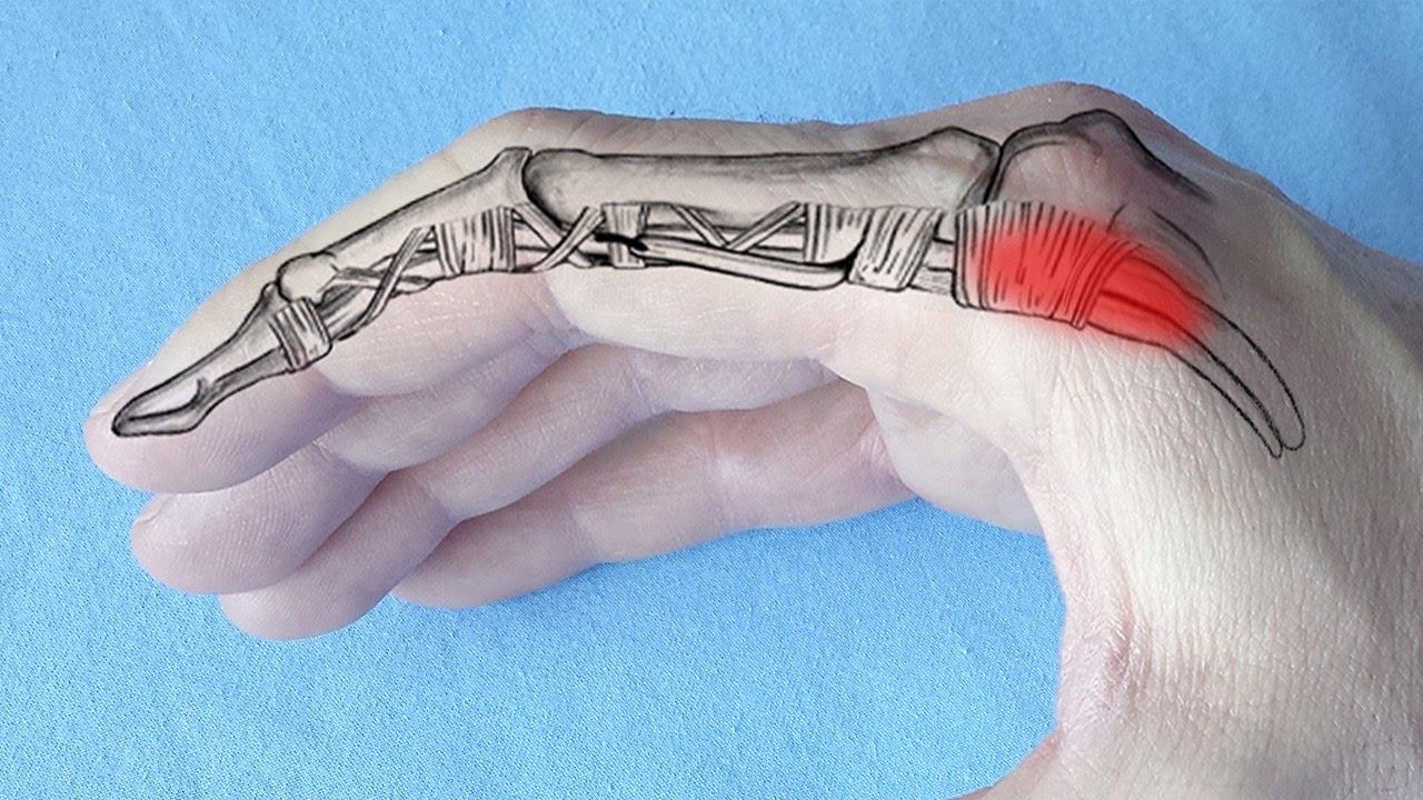 Dacă articulația de pe degetul arătător doare, SFATUL SPECIALISTULUI