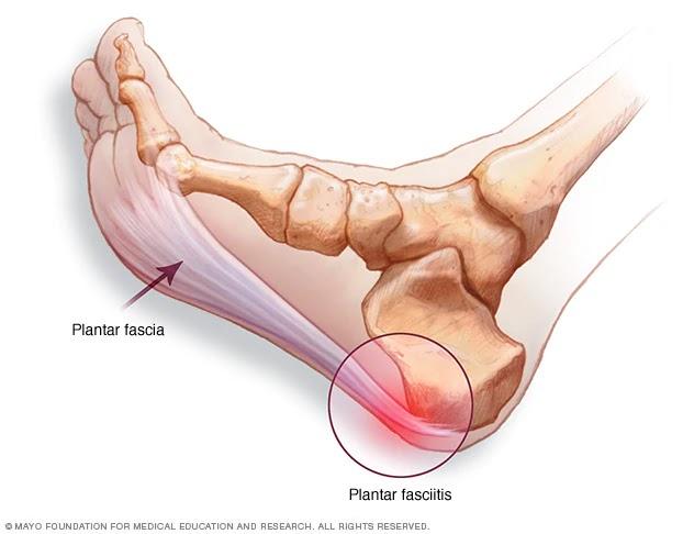 articulație în călcâie doare