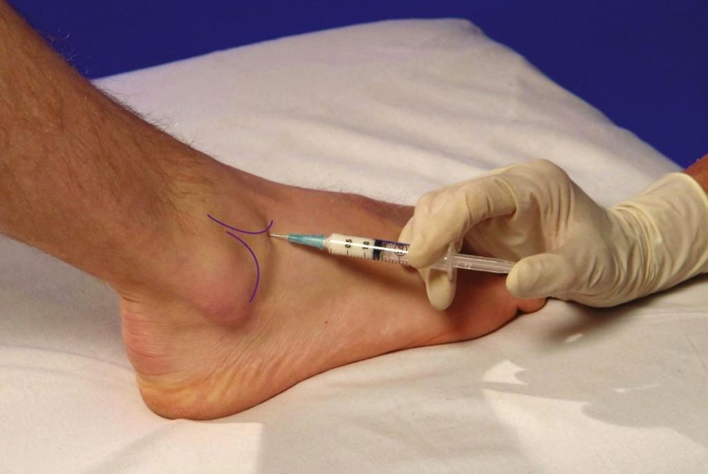 tratamentul exacerbării artrozei în. tratamentul cu git al artrozei