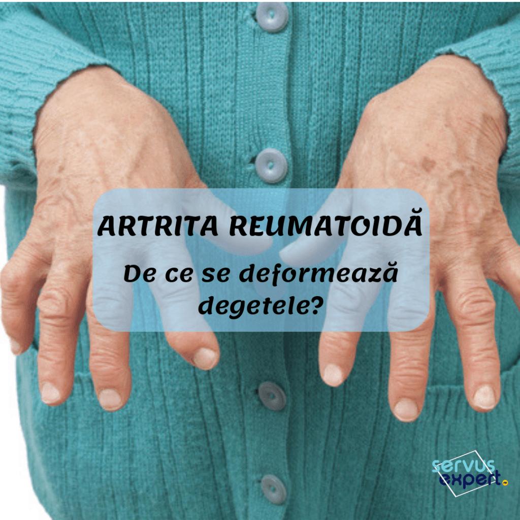 artrita pe tratamentul degetelor mari artroza gleznei