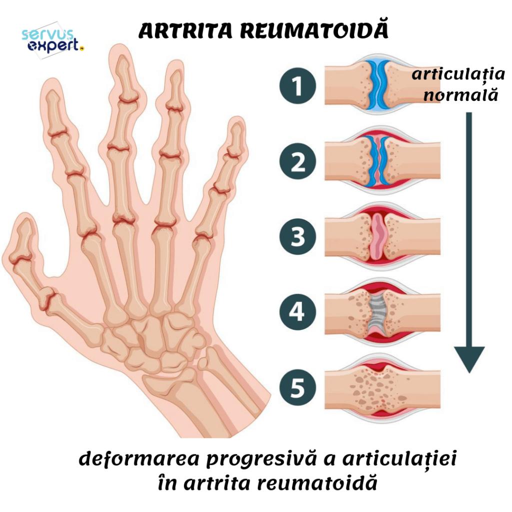 va face artrită dacă vă crăpați degetele durere dureroasă persistentă în articulația umărului drept