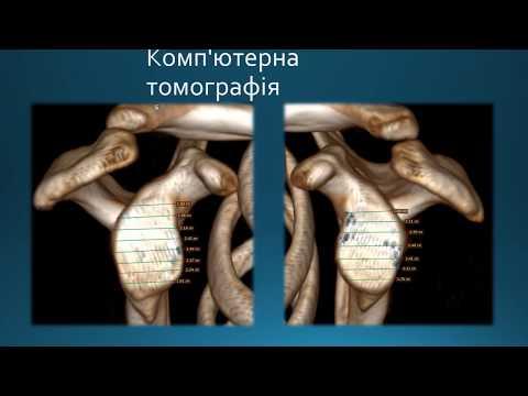 Tratament articular brovary