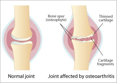 osteocondroza articulațiilor din care ce injecții fac din durerile articulare