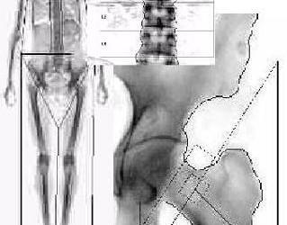 tratamentul medicamentelor pentru șold osteoporoză