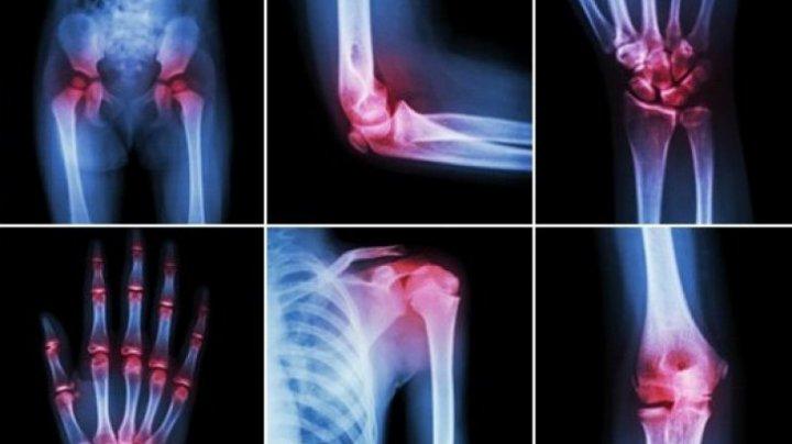 Artrita reumatoidă, vindecată pentru prima dată