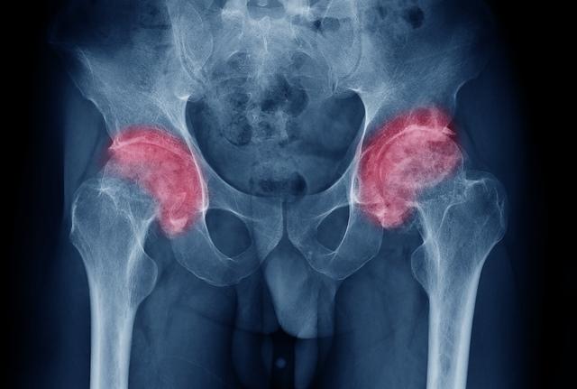Articulația genunchiului și rănile acesteia