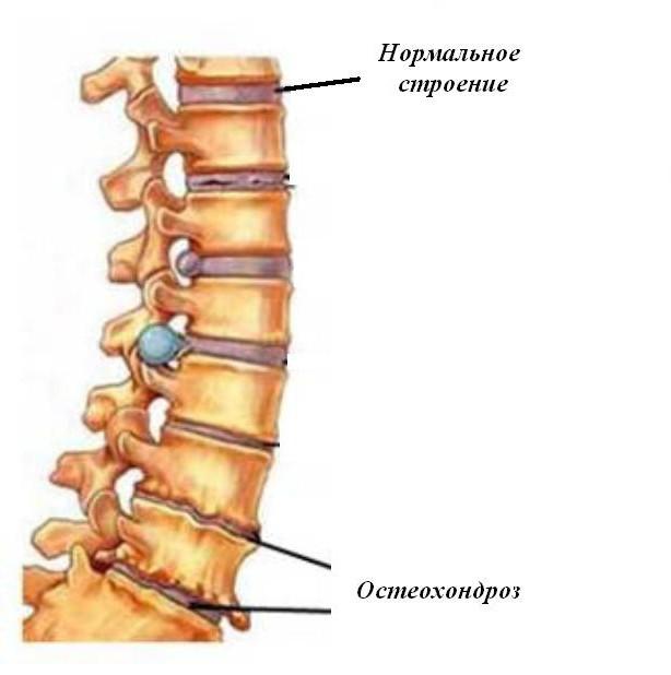 medicamente tratamentul zgomotului urechii osteocondrozei cervicale