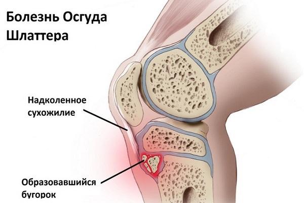 condil al articulației genunchiului