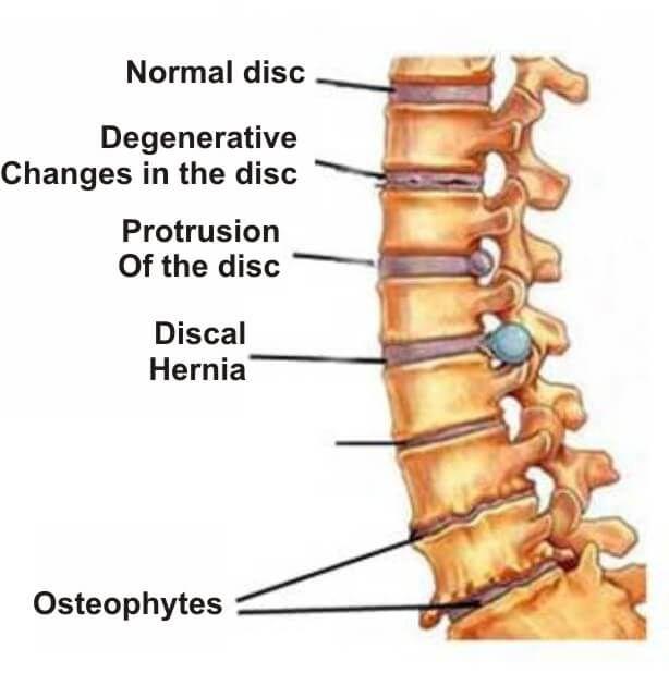 Metode moderne de tratare a osteoartrozei genunchiului. Navigare principală