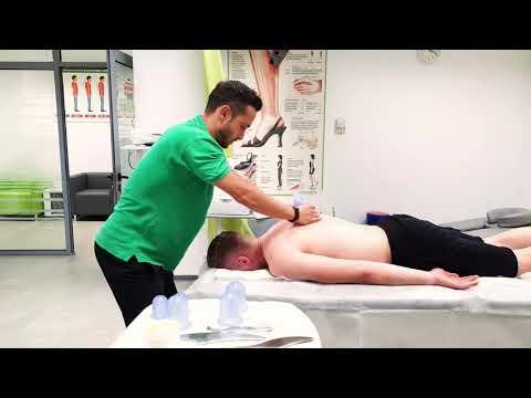 hijama tratament artroza