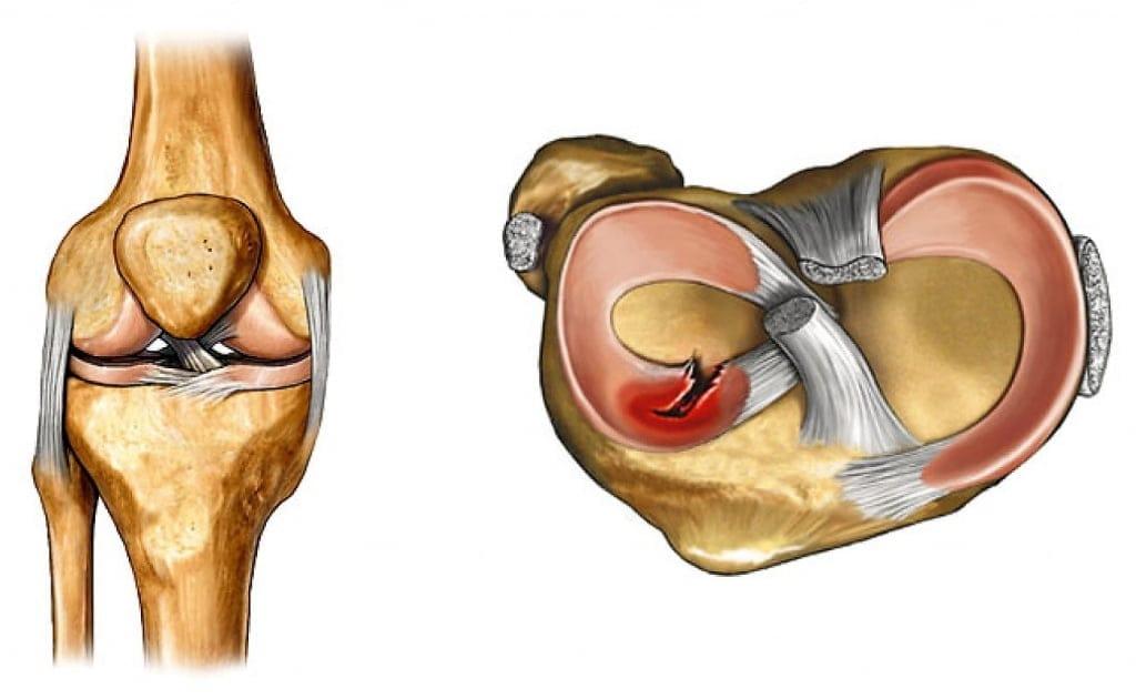 medicamente pentru durerea în articulații și mușchi