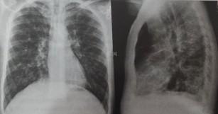 Boala mixtă de țesut conjunctiv - Prezentare. boli de țesut conjunctiv difuz
