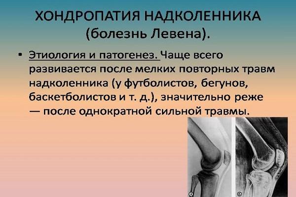 inflamarea articulațiilor zahăr tratament de entorsă la nivelul șoldului