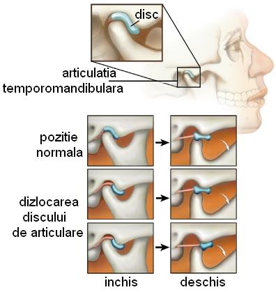 tratarea coatelor articulațiilor eucaliptul tratează articulațiile