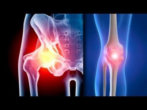 boli degenerative ale articulațiilor