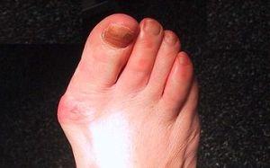 articulația pe picior doare lângă degetul mare