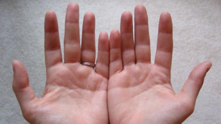 articulații pe degetul mic