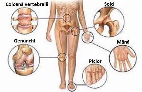 articulațiile ameliorează durerea