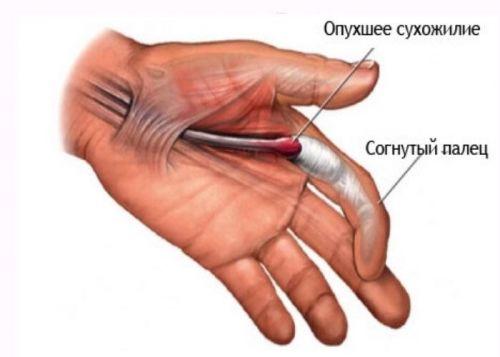 unguente eficiente pentru articulații durere în articulația degetului inelar al mâinii drepte
