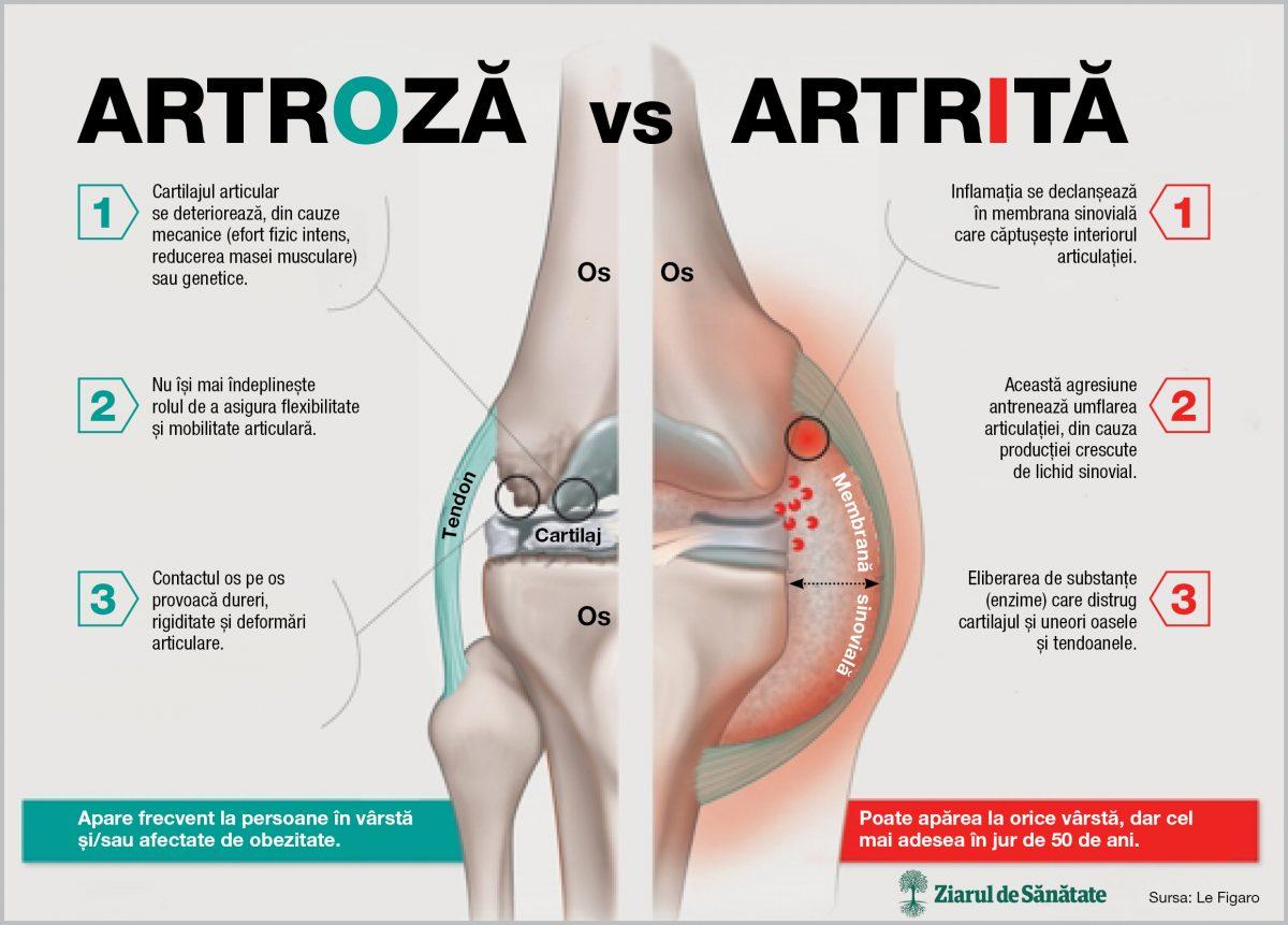 artrita articulațiilor cu mâinile