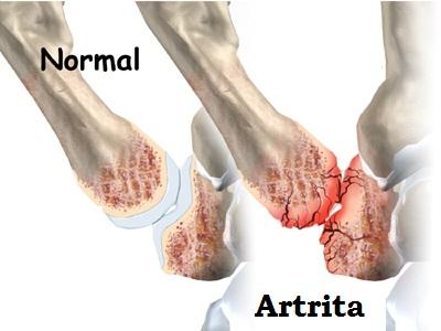 artrita degetului .tratament
