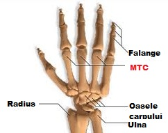 artrita falangelor degetelor