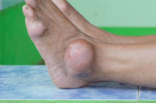 artrita guta a cotului