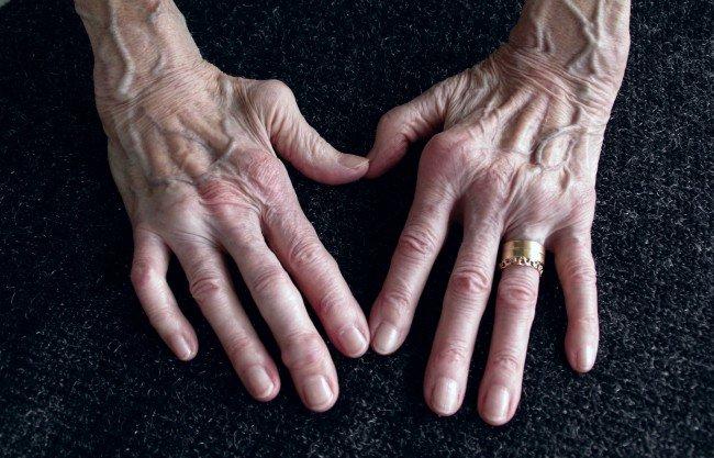 dureri musculare și de braț recenzii cu laser de artroză