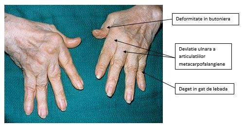 faceți clic pe articulațiile genunchiului și durere dureri articulare musculare