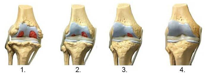 artroza articulației gleznei 4 grade dureri articulare infecție virală